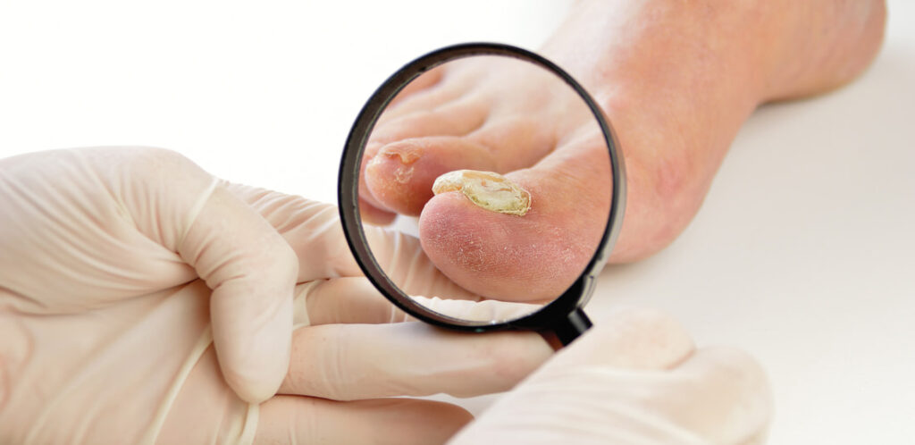 Laser for Fungal Nail Infection